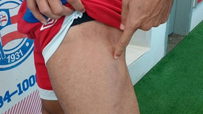 Edson mostra hematoma na coxa esquerda (Foto: Rafael Santana)