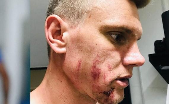 Goleiro Douglas fica em observação após sofrer um corte no rosto